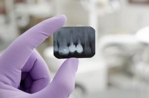 Oralchirurgie Berlin